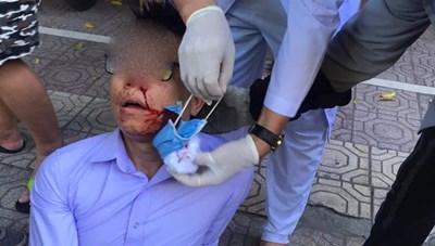 Vụ cán bộ phường bị chặn đường, đánh bất tỉnh ở Thái Bình: Khởi tố 5 bị can