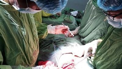 Phẫu thuật cứu bé trai 9 tuổi bị kéo đâm thủng tim