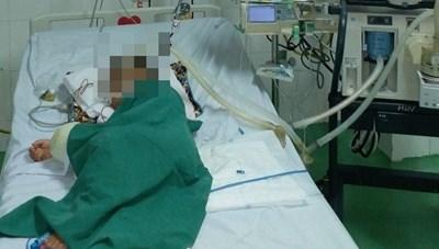 Phá tổ ong vò vẽ, bé trai 4 tuổi bị đốt hơn 80 mũi