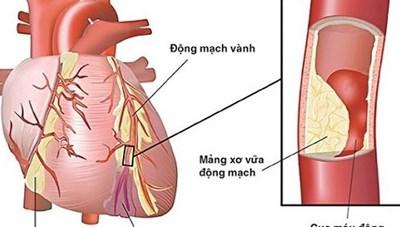 2 dấu hiệu sớm cảnh báo nhồi máu cơ tim ai cũng cần biết