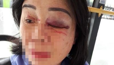 TP HCM: Nhắc mở nhạc nhỏ, nữ tiếp viên xe buýt bị hành khách đánh bầm mắt