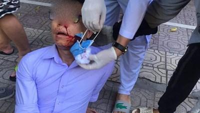 Cán bộ phường bị 2 thanh niên lạ mặt đánh bất tỉnh trên đường