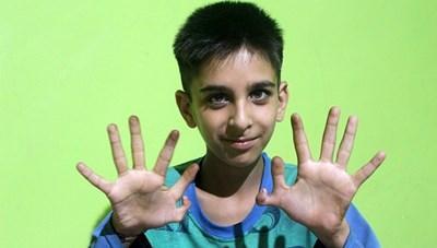 Game thủ 12 ngón tay