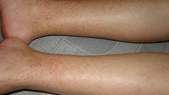 TP HCM: Sốt xuất huyết, tay chân miệng vào mùa
