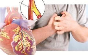 Nguy hiểm chết người từ những cơn đau thắt ngực