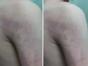 Học sinh lớp 1 bị cô giáo chủ nhiệm đánh thâm tím người