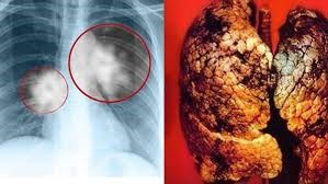 Ung thư phổi diễn biến phức tạp