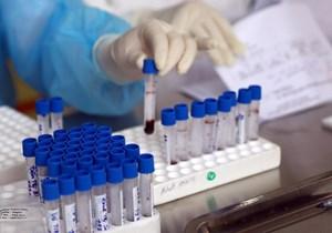 Mở rộng điều tra vụ án CDC Hà Nội mua máy xét nghiệm với giá chênh gần 5 tỷ đồng