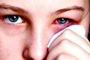 Lo ngại dịch đau mắt đỏ