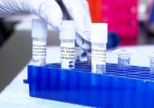 Dễ nhầm lẫn giữa sốt xuất huyết và Covid-19