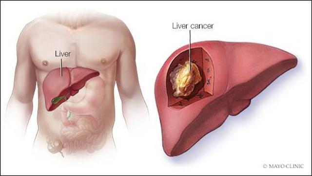 Đũa có dấu hiệu này cần vứt bỏ ngay để tránh rước ung thư vào người - Ảnh 3