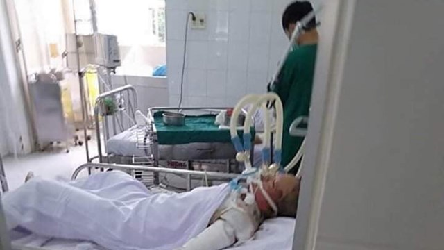 T. đang điều trị tại Bệnh viện Chợ Rẫy TP.HCM trong tình trạng bỏng nặng.