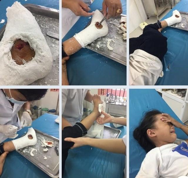 Cháu bị thương sau đó được đưa vào cơ sở y tế khám và băng bó. Bác sĩ cho biết, cháu Lê bị mẻ, rạn xương, một phần thanh sắt đâm vào chân làm lộ xương bên trong phải khâu nhiều mũi.