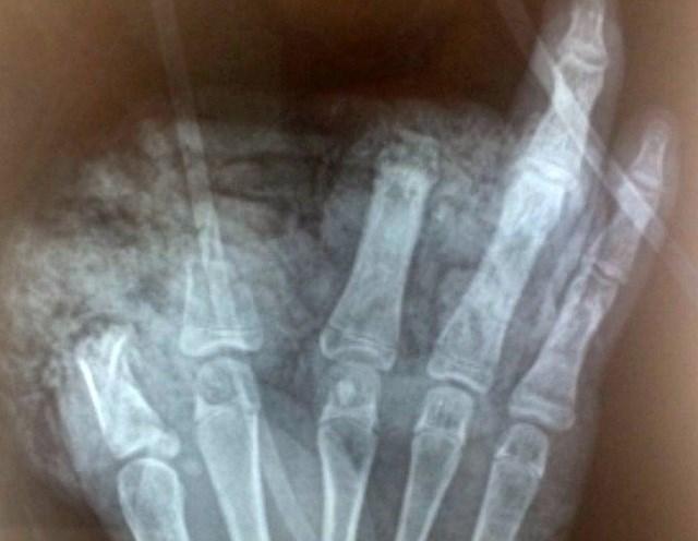 Trẻ bị cụt 3 ngón tay ở bàn tay phải.