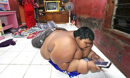 Cậu bé béo nhất thế giới giảm được 83 kg