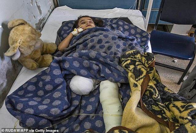 [ẢNH] Những đứa trẻ Syria bị trúng bom trong chiến sự dữ dội của Thổ Nhĩ Kỳ - 5