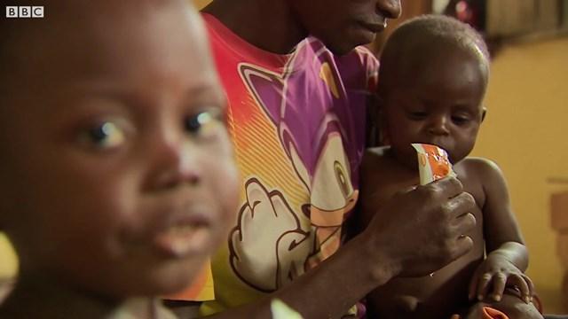 Cảnh báo trẻ suy dinh dưỡng toàn cầu