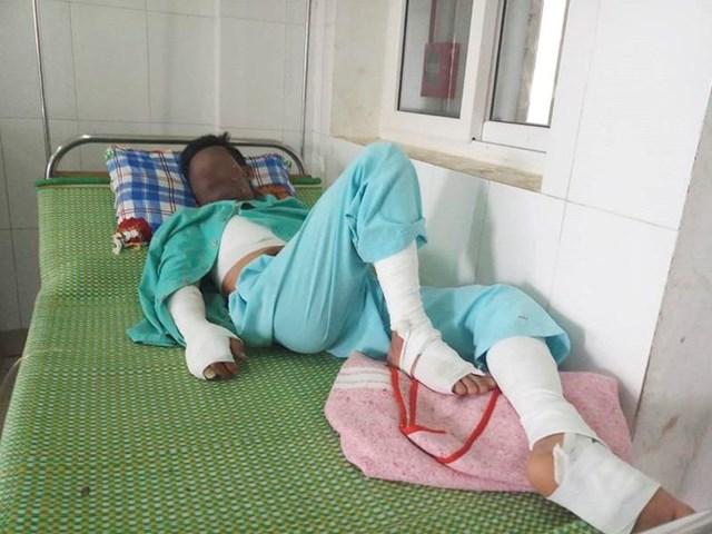 Sử dụng điện thoại khi đang sạc pin, một thanh niên bị bỏng nặng
