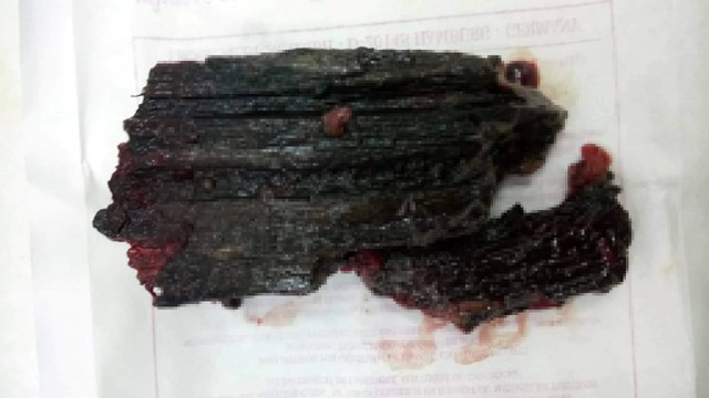 Quảng Nam: Cứu sống bệnh nhân Cơtu bị cây đâm thủng đùi - 1