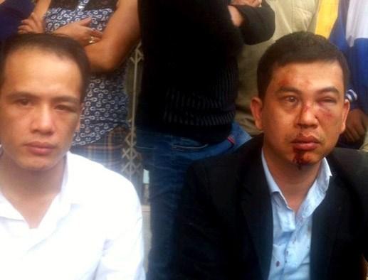Công an điều tra vụ '2 luật sư bị hành hung'