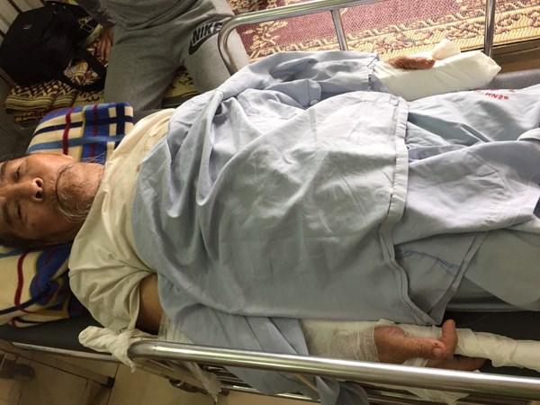 Cụ ông 83 tuổi bị đánh gãy 2 tay vì đi thể dục làm chó sủa