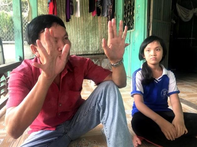 Kỳ lạ gia đình 3 đời đều có người 24 ngón