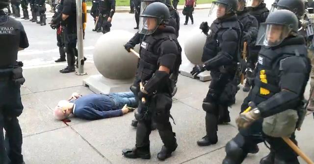 57 cảnh sát Mỹ từ chức sau vụ đồng đội xô cụ ông 75 tuổi ngã bất tỉnh