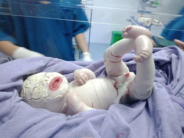 Trẻ sơ sinh ở Quảng Ninh mắc bệnh hiếm gặp, toàn thân bao phủ da dày bị rạn nứt thành từng mảng.