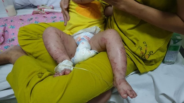 Trường hợp bệnh nhi mắc tay chân miệng kèm theo bội nhiễm da nặng sau khi bố mẹ tự ý mua thuốc chữa cho con.