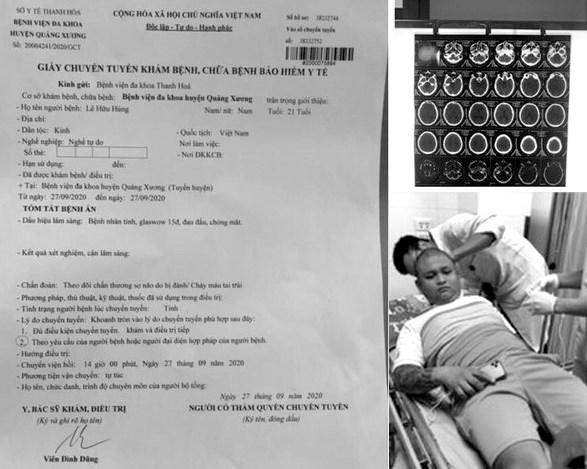 Anh Lê Hữu Hùng đang điều trị tại BVĐK Thanh Hoá trong tình trạng thủng màng nhĩ.