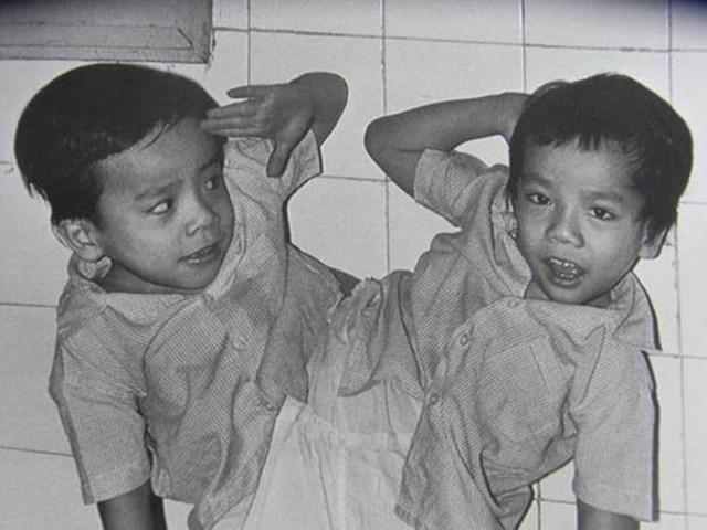 Ca mổ tách cặp song sinh đầu tiên tại Việt Nam. Nguồn: Internet.