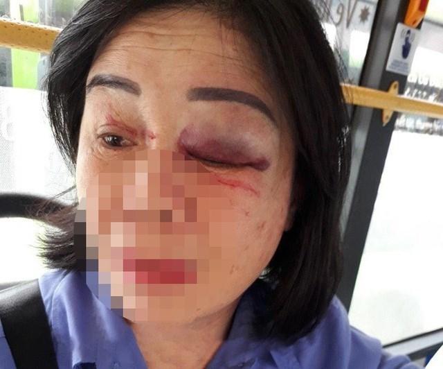 Nữ tiếp viên xe buýt bị nam hành khách đánh bầm mắt trái.