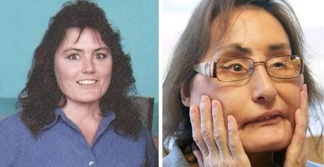 Bà Connie Culp trước và khi được ghép mặt. Ảnh: AP.