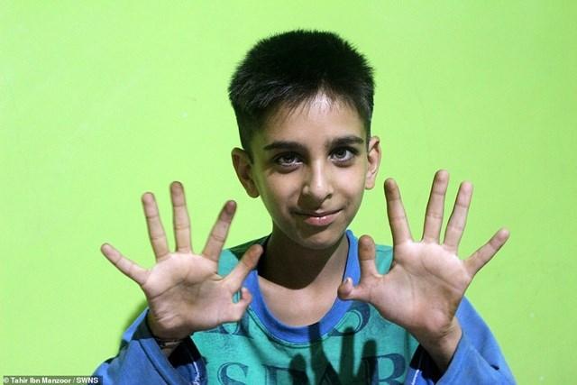 Game thủ 12 ngón tay - Ảnh 1